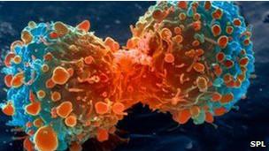 A pesquisa mostrou resultados em um determinado tipo de câncer de pulmão.